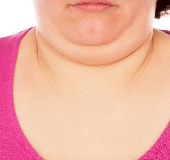 how-to-lose-neck-fat
