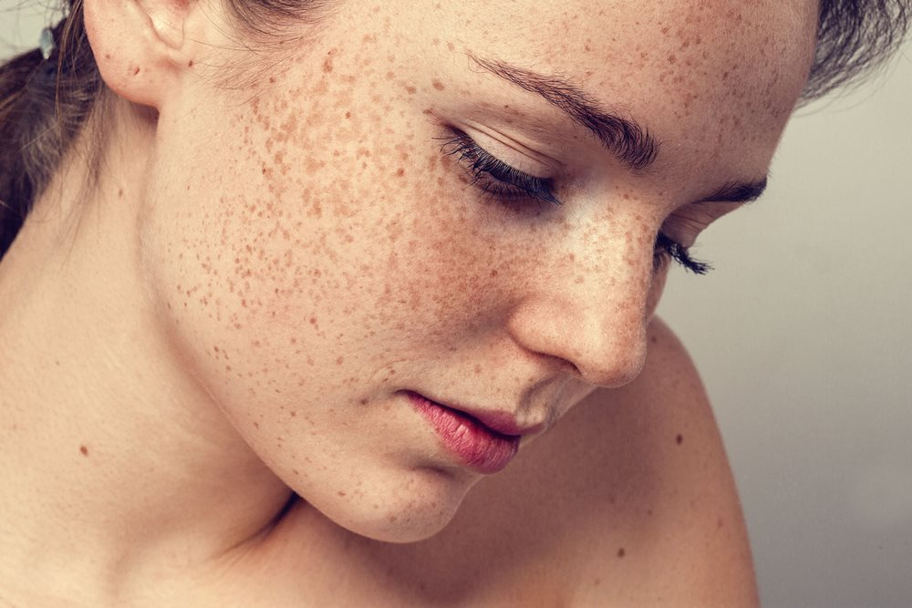 Sunspots on Face and Freckles: