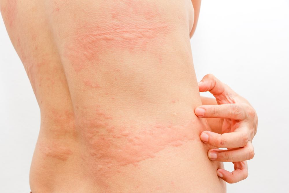 What Are Hives And How To Get Rid Of Hives - Charlies Magazines-8368