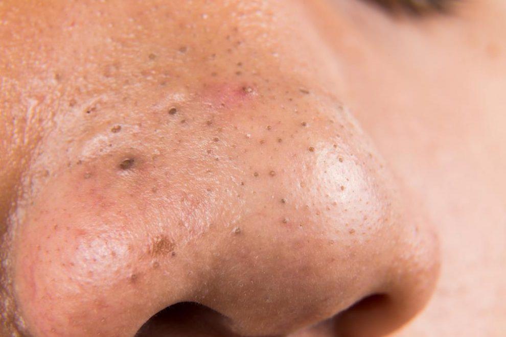 blackheads on nose