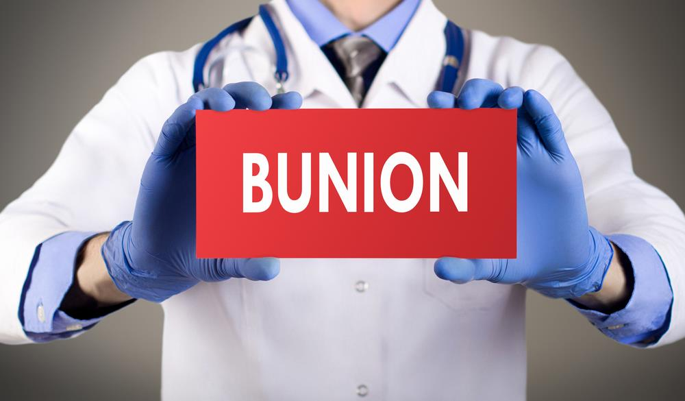 Bunions from medical point of view