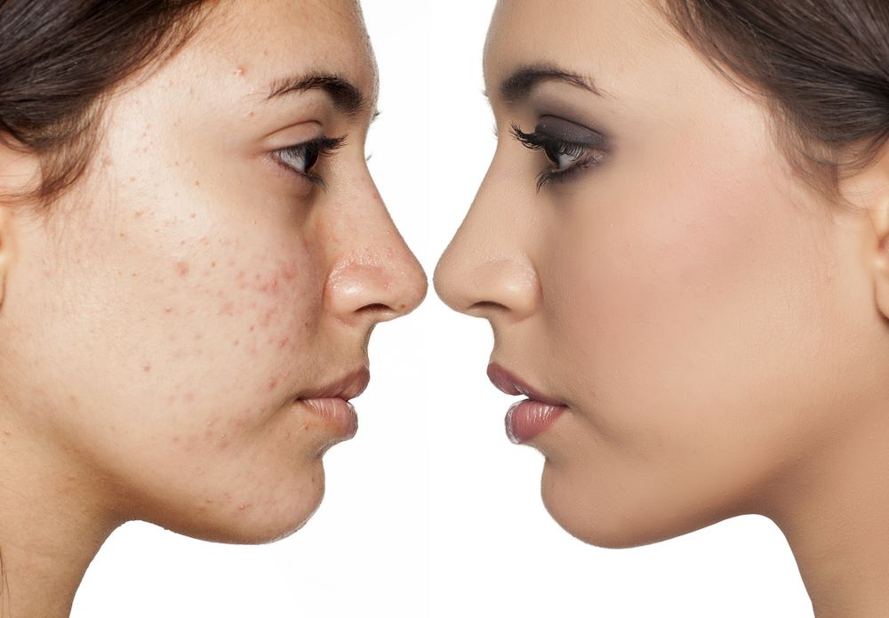 It is a true that picking at pimples causes scars?