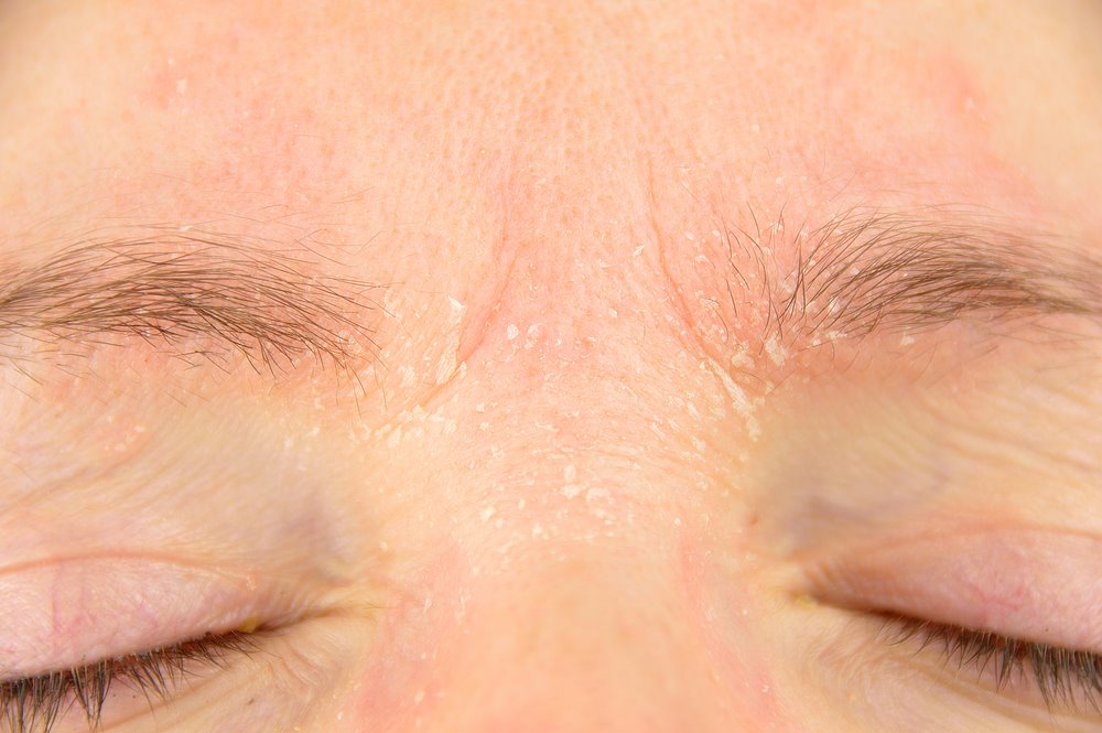 Facial hyperhiodrosis treatment causes