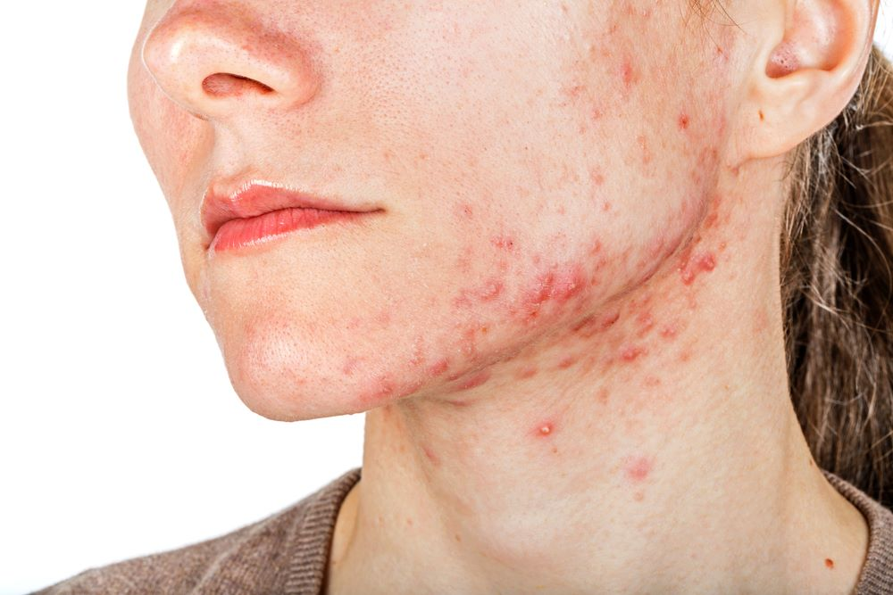 When acne scars are formed?