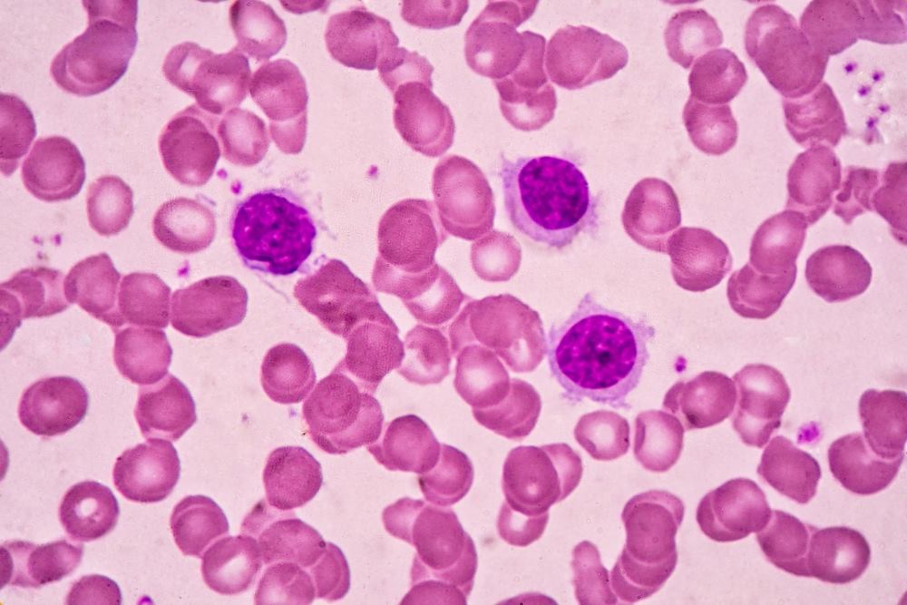 absolute lymphocyte count low
