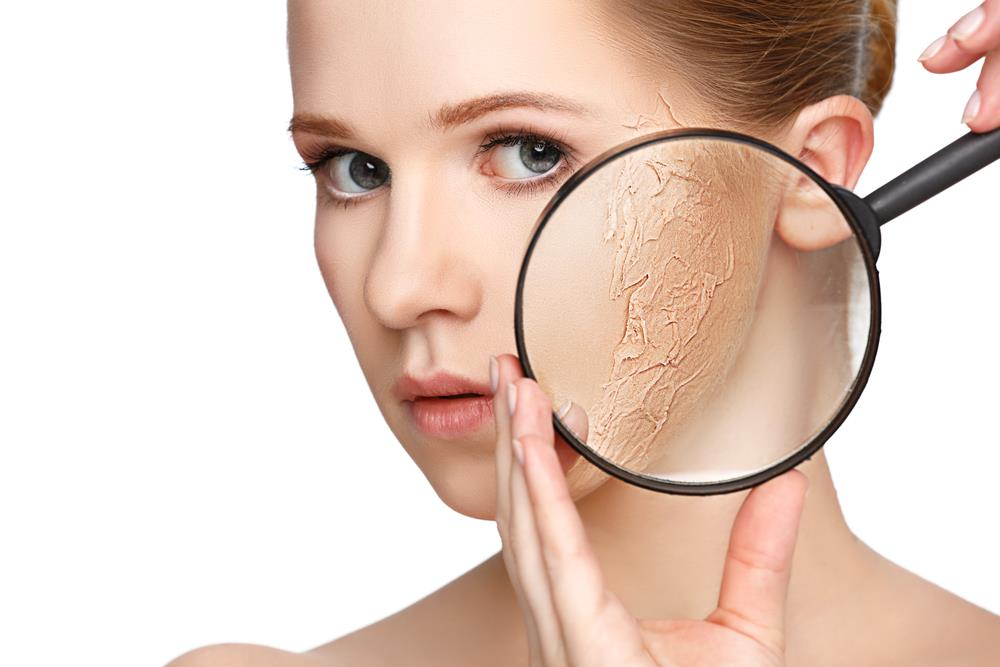 Causes of dry patches on face and their treatment