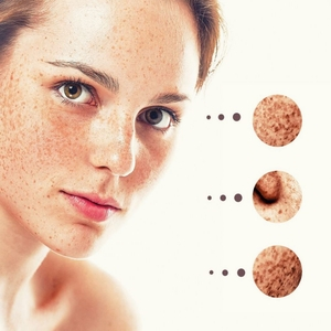 Get rid of Acne Scars with most effective Home Remedies & treatments