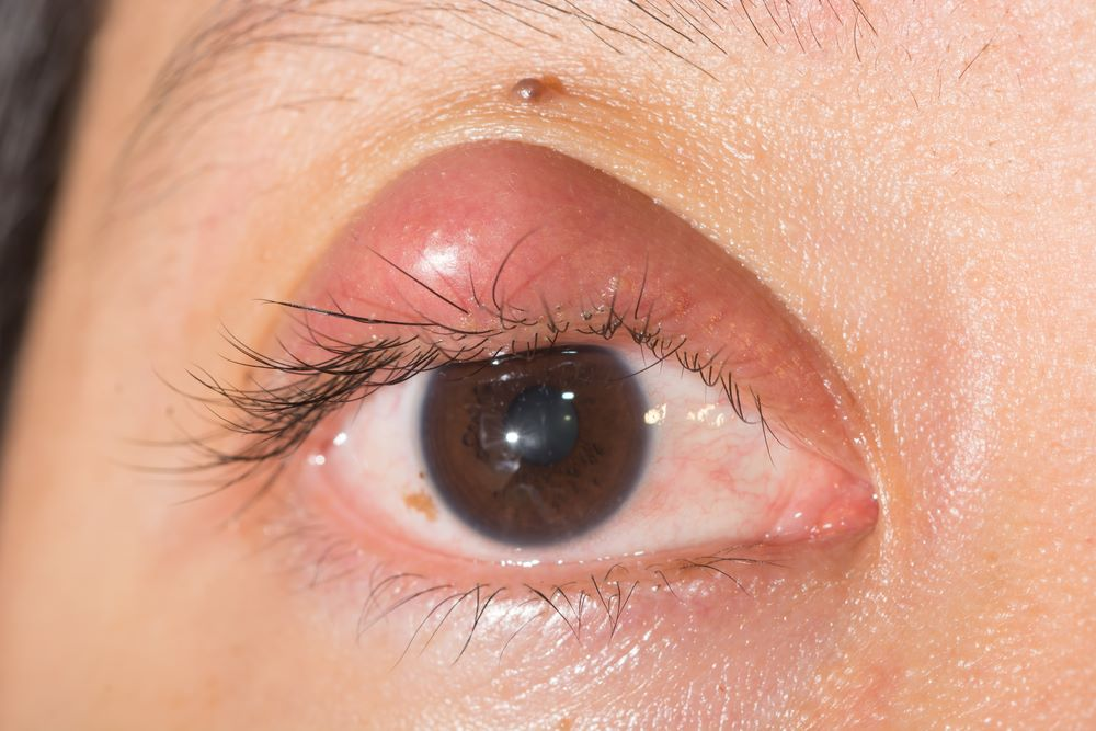 What are the Types of Stye