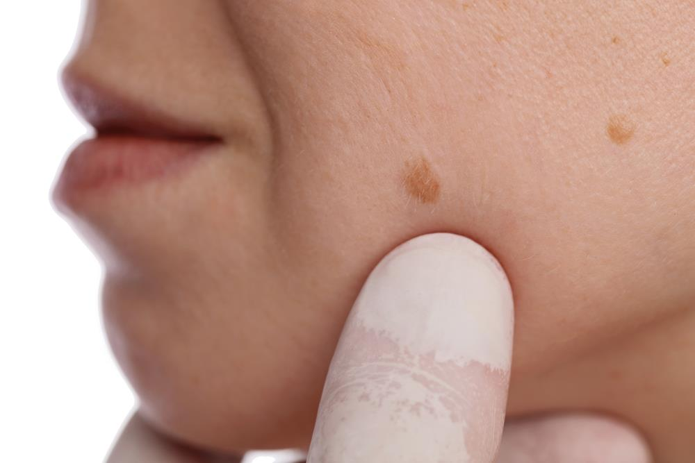 Which Parts of Skin are more prone to develop Skin Tags ?