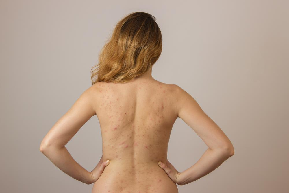 Back Acne Causes, How to Get Rid of Back Acne?