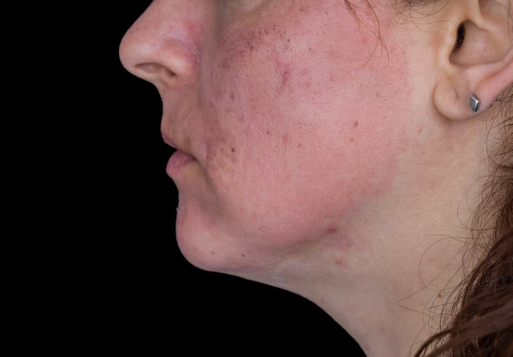 What Causes Black Spot on Face