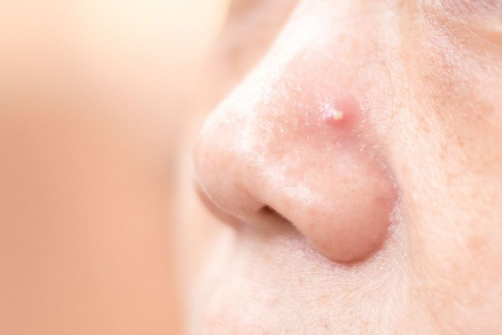 pimple in nose