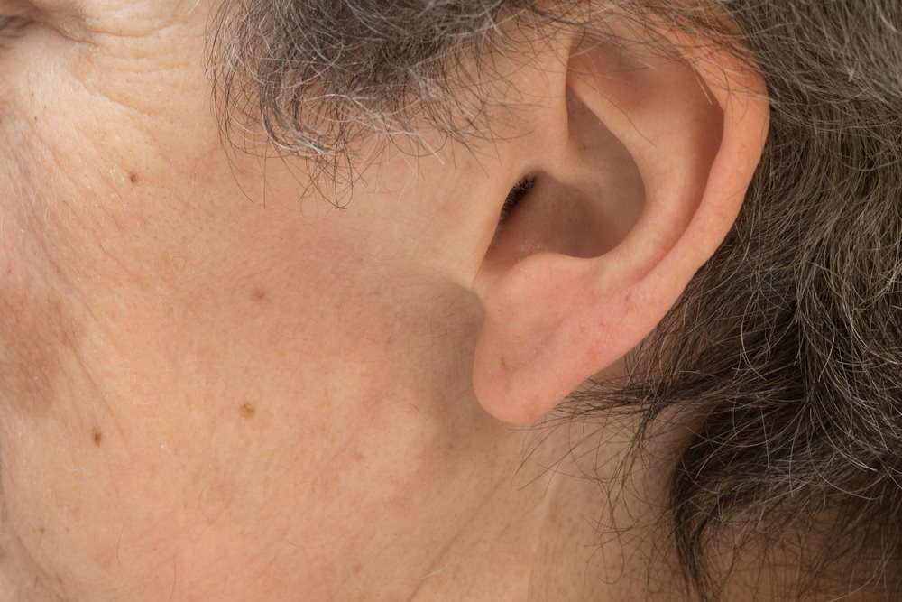 Treatment Options for Lumps Behind Ears