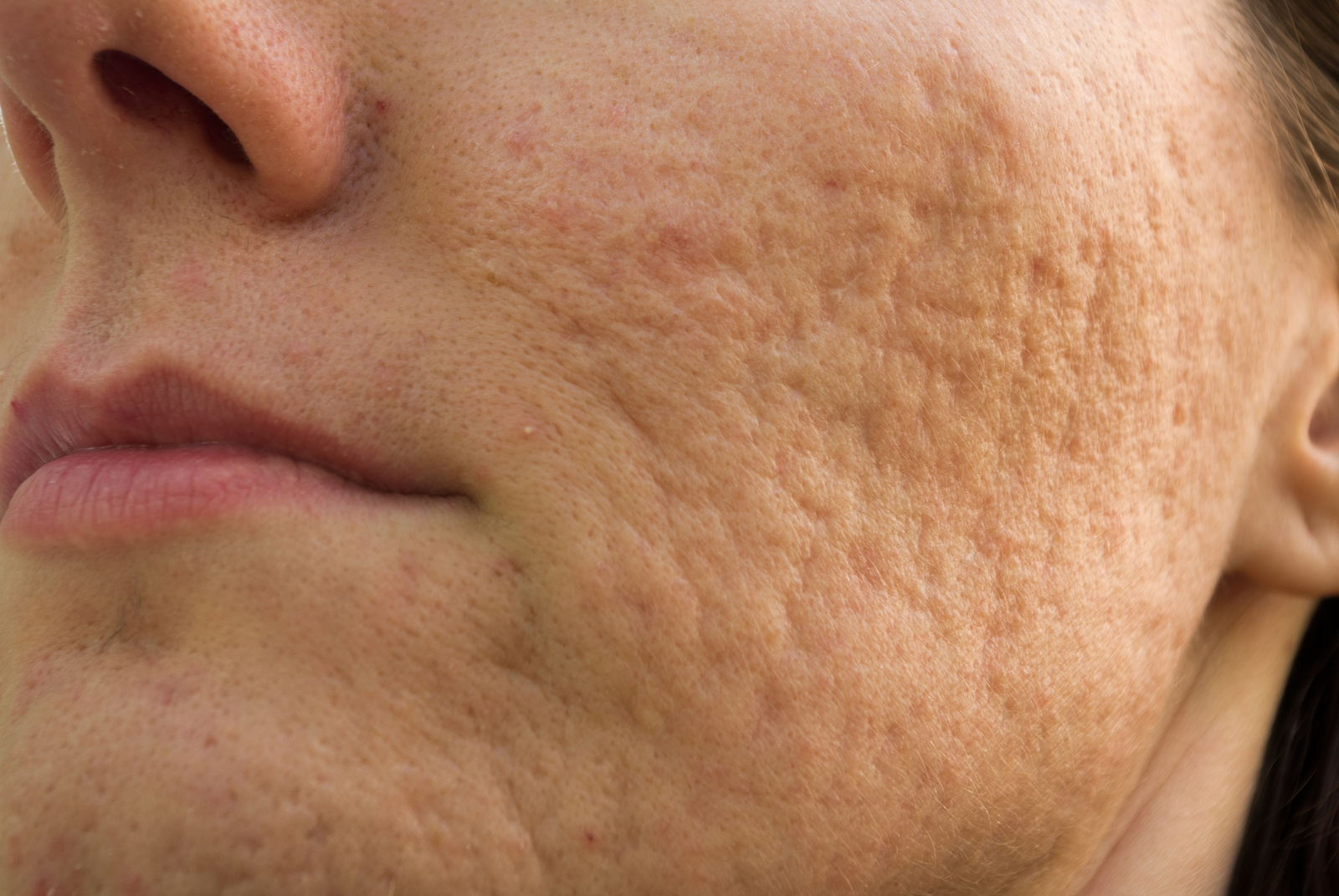 Types of Acne And Causes